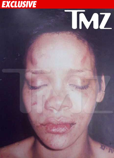 rihanna-beating-photo